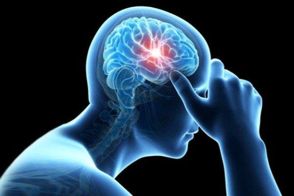 سکته مغزی در کمین بیماران مبتلا به اختلالات ضربان قلب