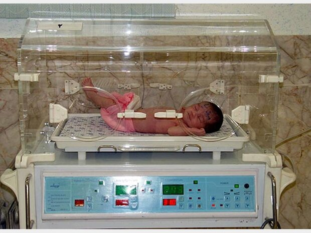 یک نوزاد از هر ۱۰۰۰ تولد زنده با سندرم داون به دنیا می آید